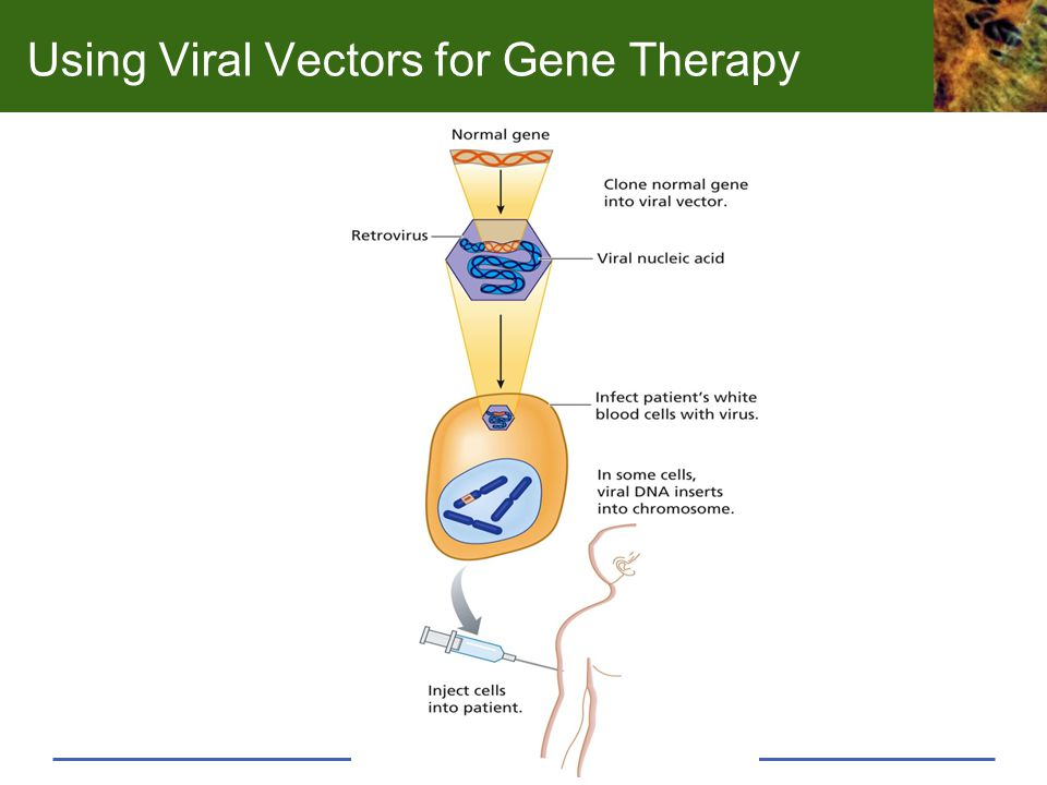 Using Viral Vectors for Gene Therapy