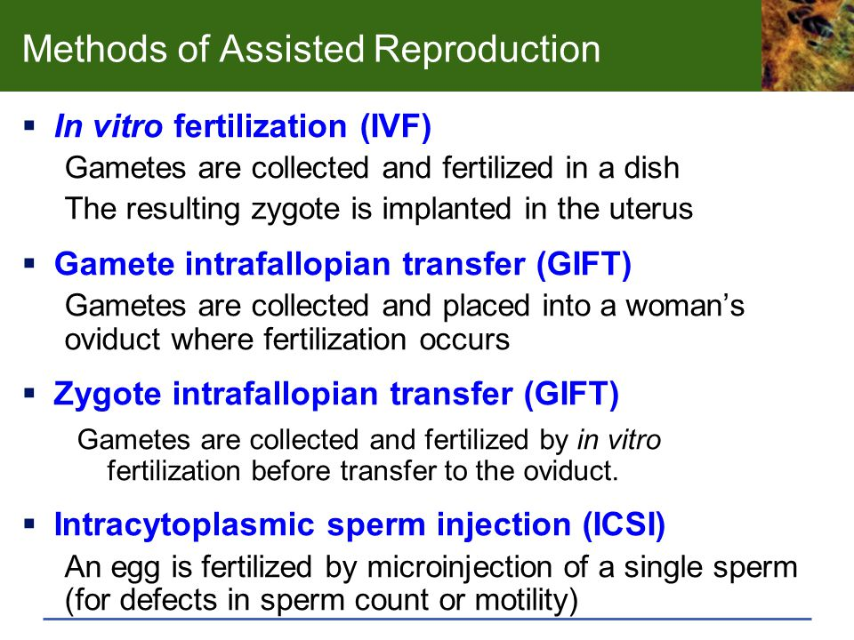 Methods of Assisted Reproduction