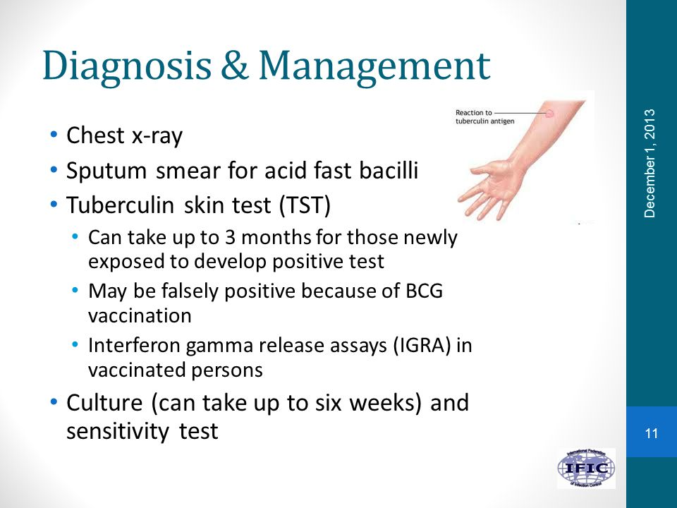 Diagnosis & Management