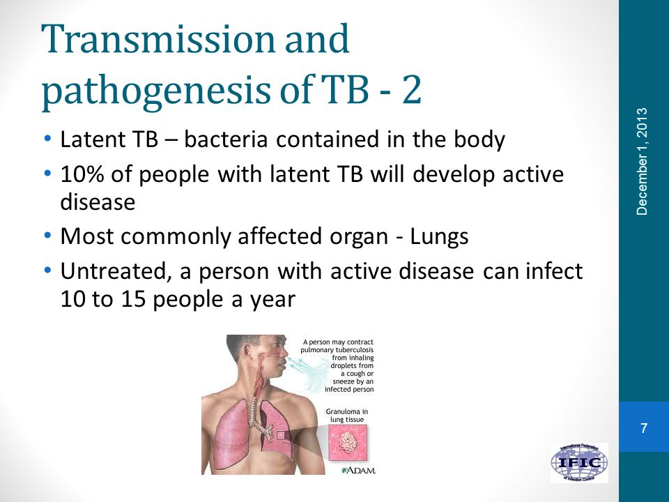 Transmission and pathogenesis of TB - 2