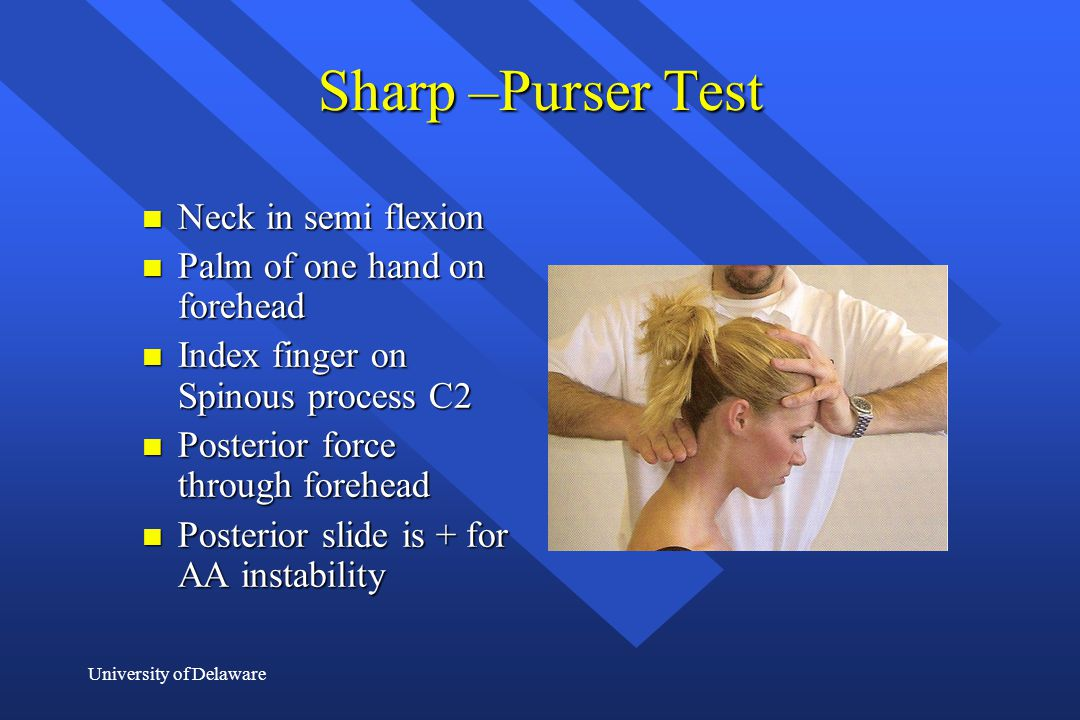 Sharp –Purser Test Neck in semi flexion Palm of one hand on forehead