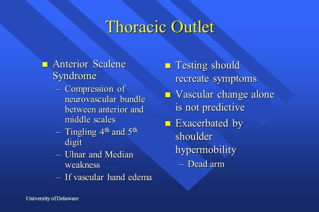Thoracic Outlet Anterior Scalene Syndrome