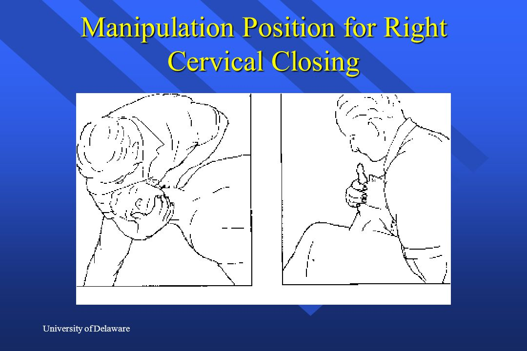 Manipulation Position for Right Cervical Closing