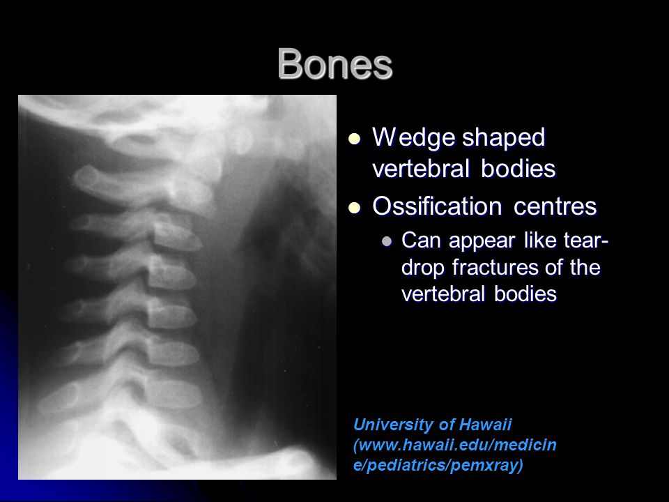 Bones Wedge shaped vertebral bodies Ossification centres