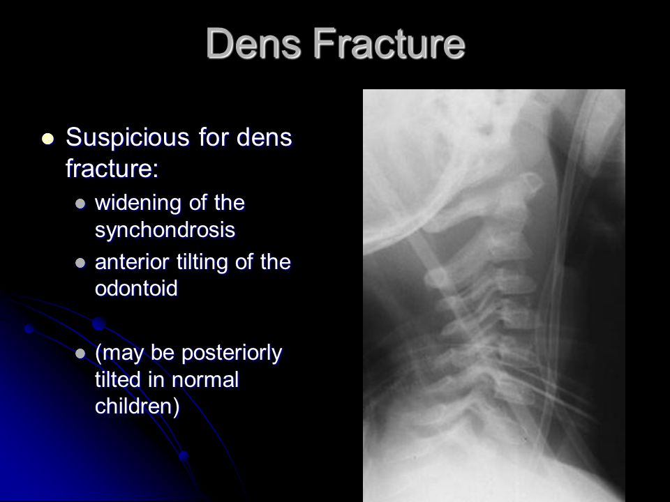 Dens Fracture Suspicious for dens fracture: