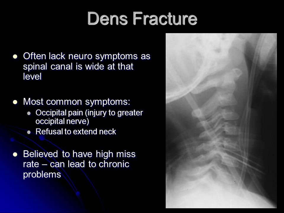 Dens Fracture Often lack neuro symptoms as spinal canal is wide at that level. Most common symptoms: