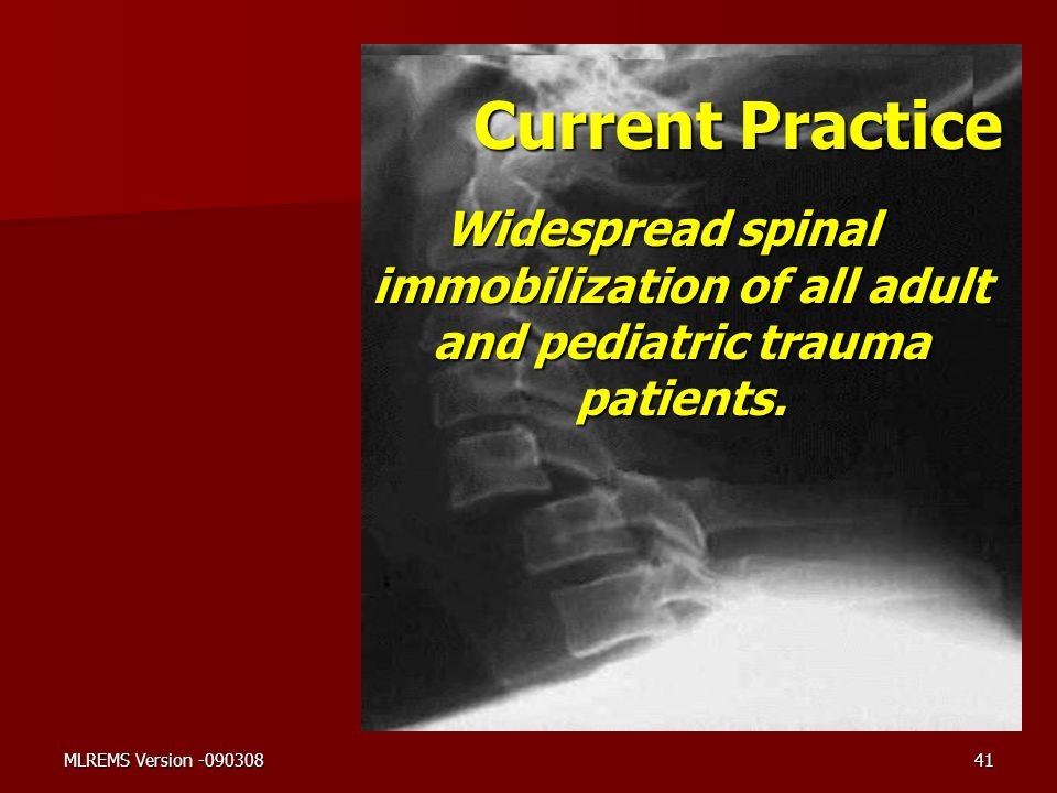 Current Practice Widespread spinal immobilization of all adult and pediatric trauma patients.