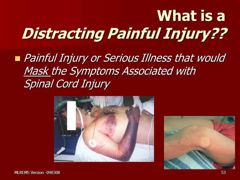 What is a Distracting Painful Injury