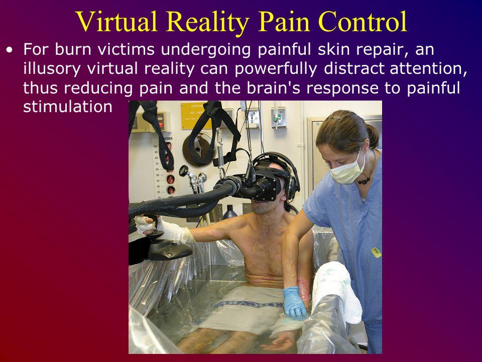 Virtual Reality Pain Control