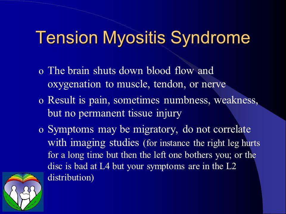 Tension Myositis Syndrome