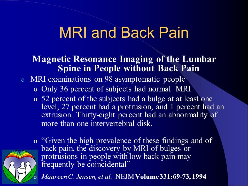 MRI and Back Pain Magnetic Resonance Imaging of the Lumbar Spine in People without Back Pain. MRI examinations on 98 asymptomatic people.