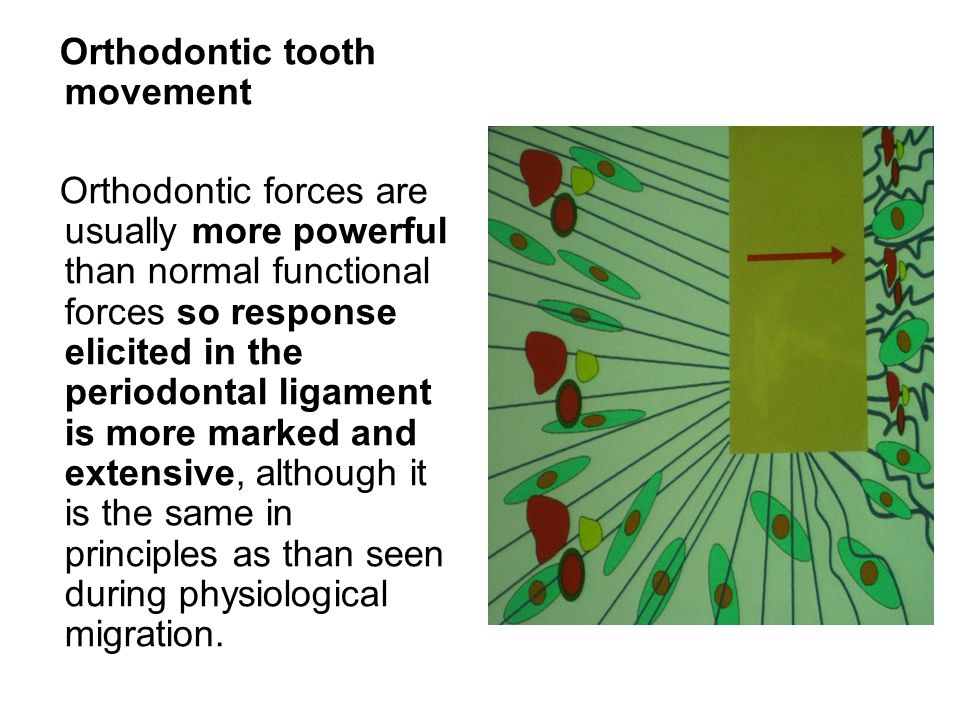 Orthodontic tooth movement