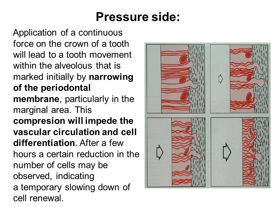Pressure side: