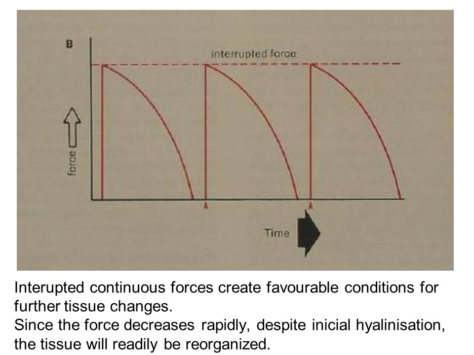 Interupted continuous forces create favourable conditions for further tissue changes.