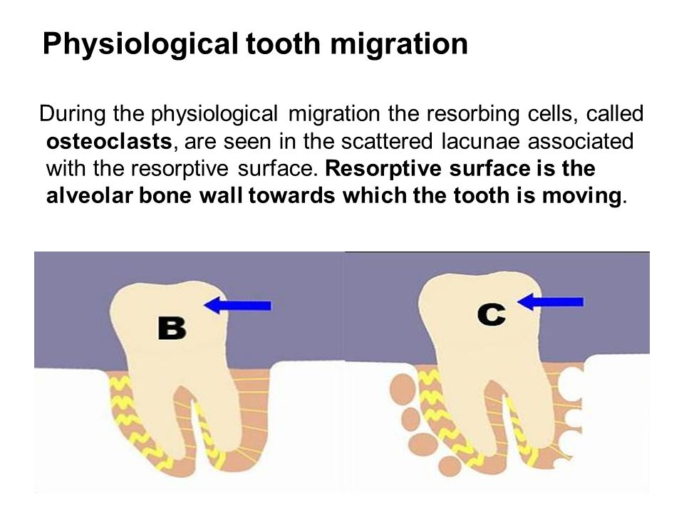 Physiological tooth migration