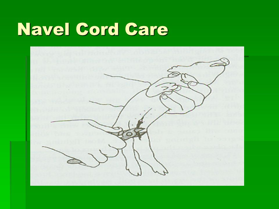 Navel Cord Care