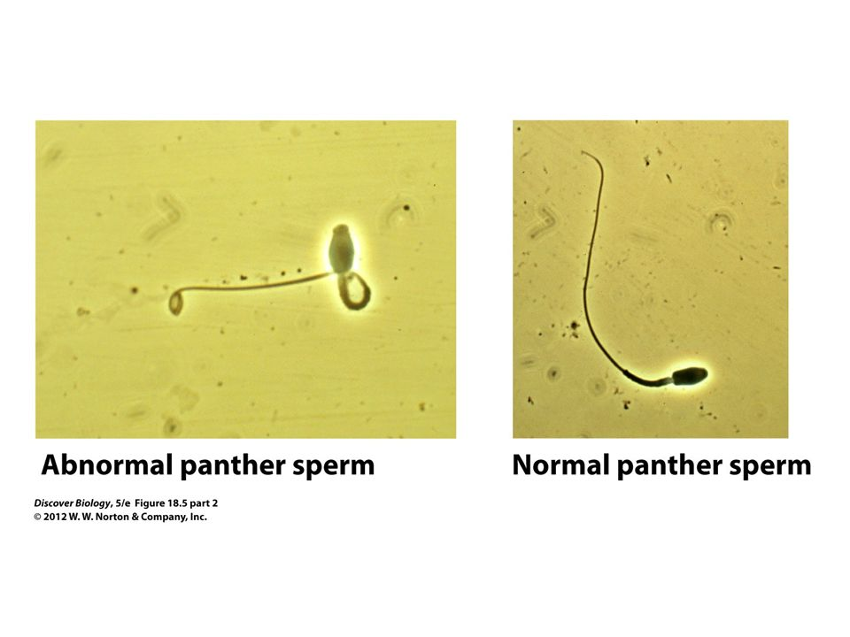 Figure 18.5 (Part 2) Abnormally Shaped Sperm in the Rare Florida Panther