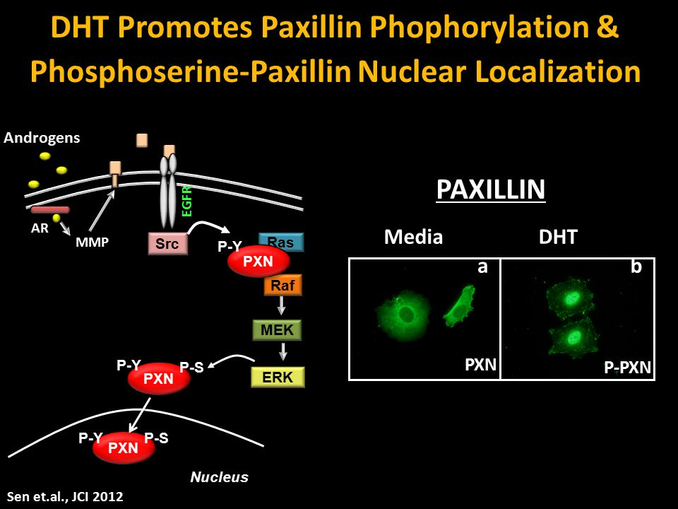 DHT Promotes Paxillin Phophorylation &