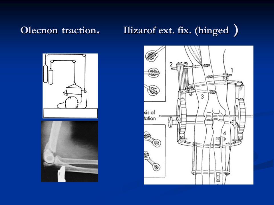 Olecnon traction. Ilizarof ext. fix. (hinged )