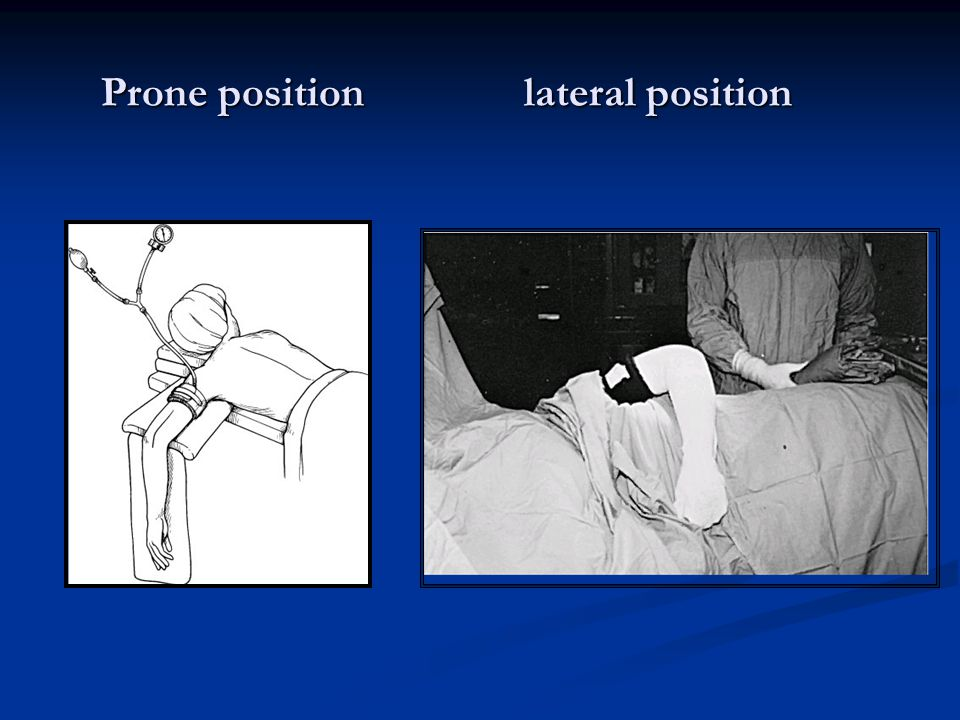 Prone position lateral position