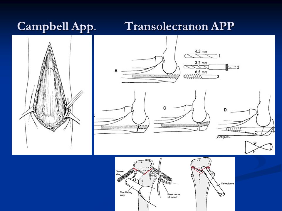 Campbell App. Transolecranon APP