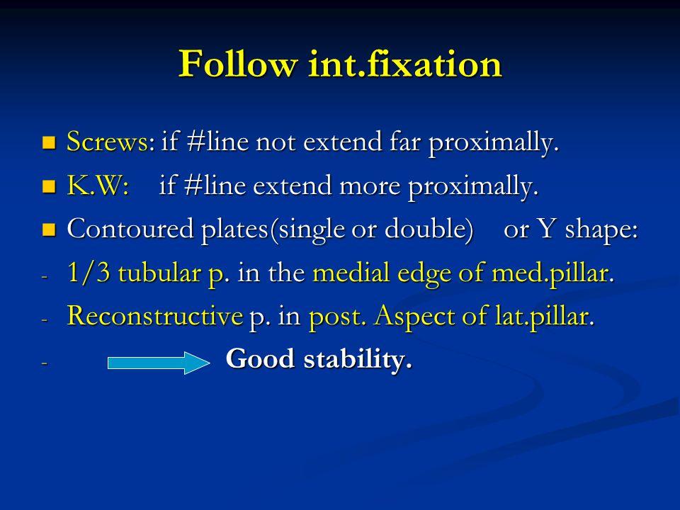 Follow int.fixation Screws: if #line not extend far proximally.