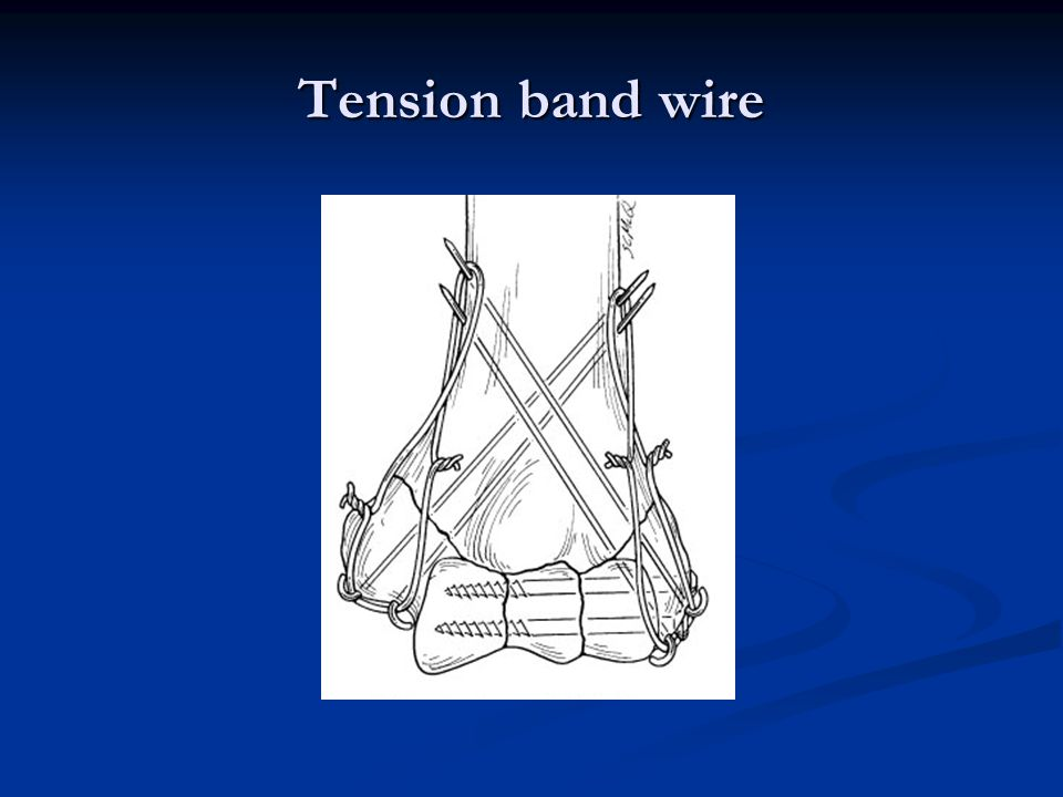 Tension band wire
