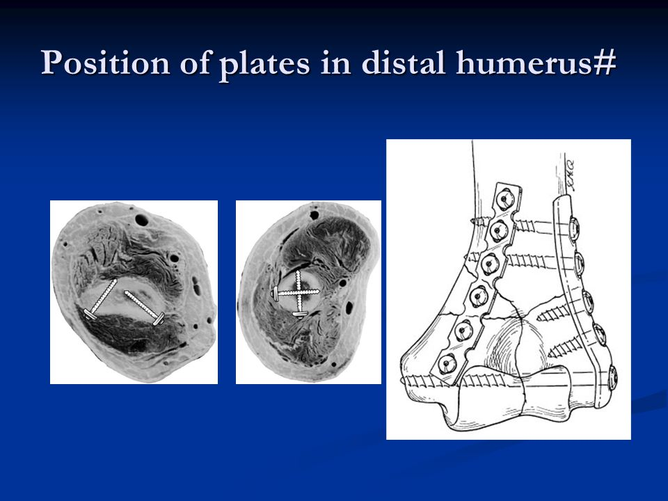 Position of plates in distal humerus#