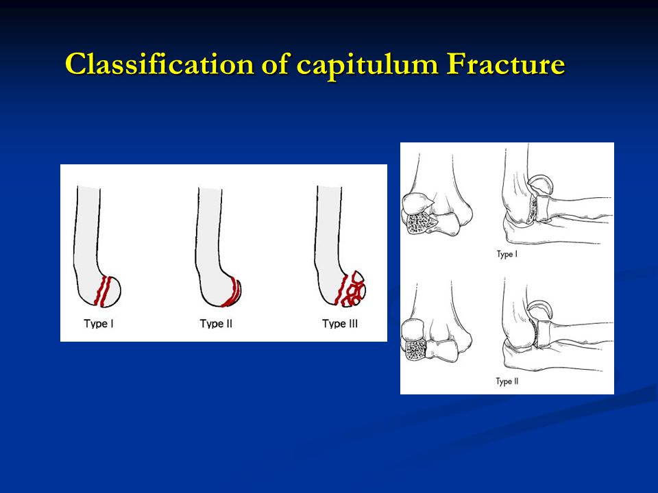 Classification of capitulum Fracture