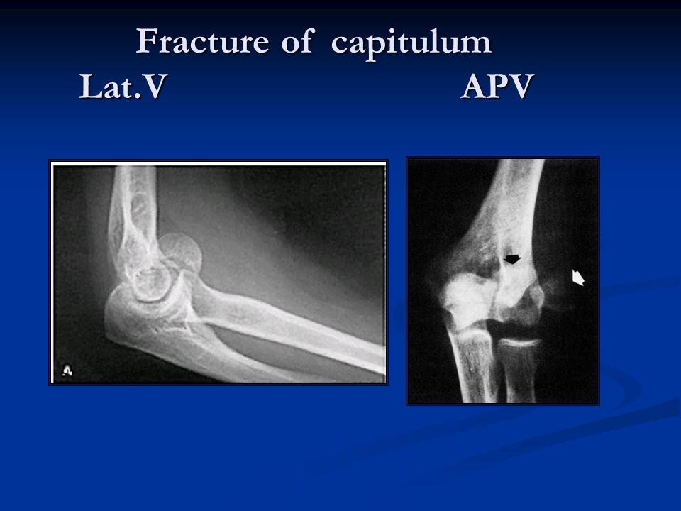 Fracture of capitulum Lat.V APV