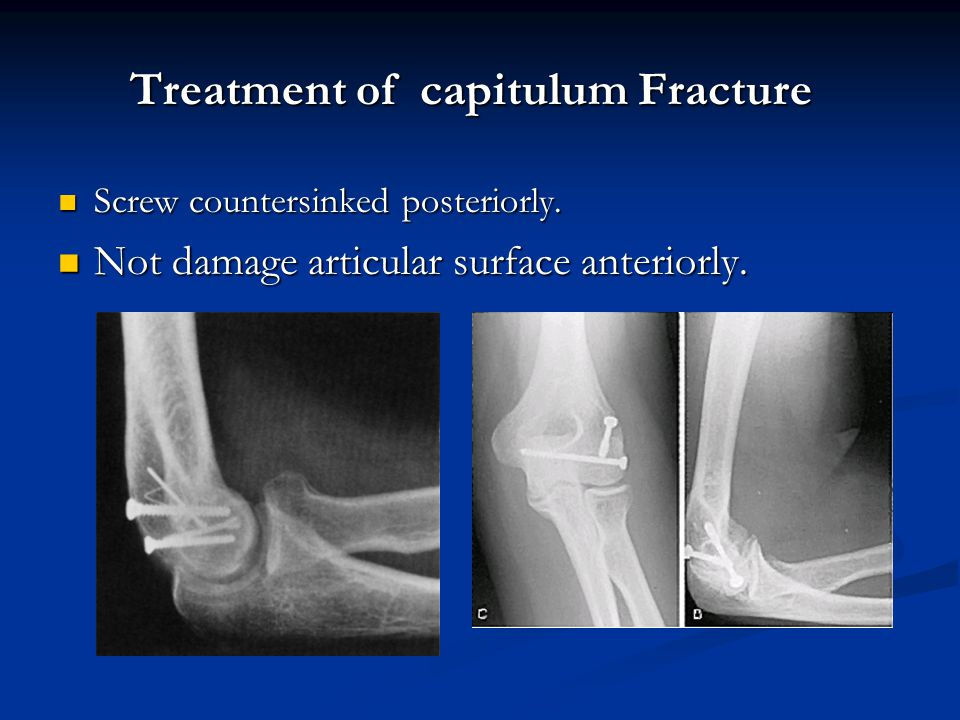 Treatment of capitulum Fracture