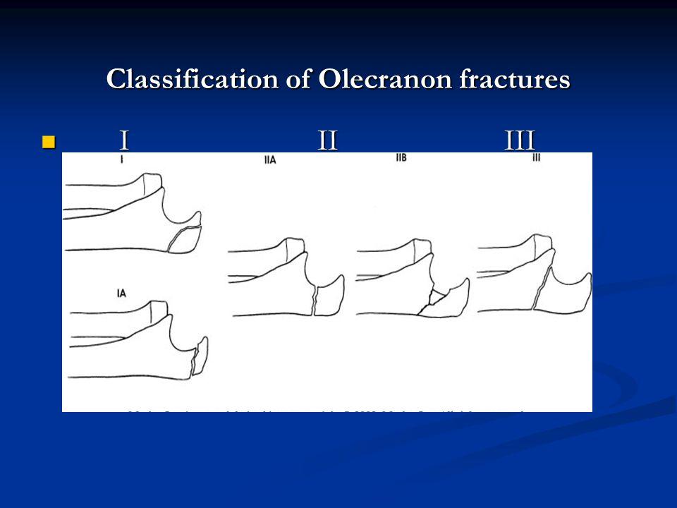 Classification of Olecranon fractures
