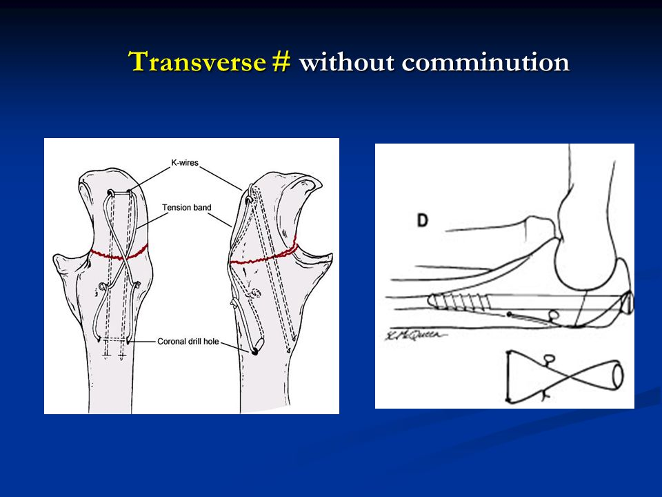 Transverse # without comminution