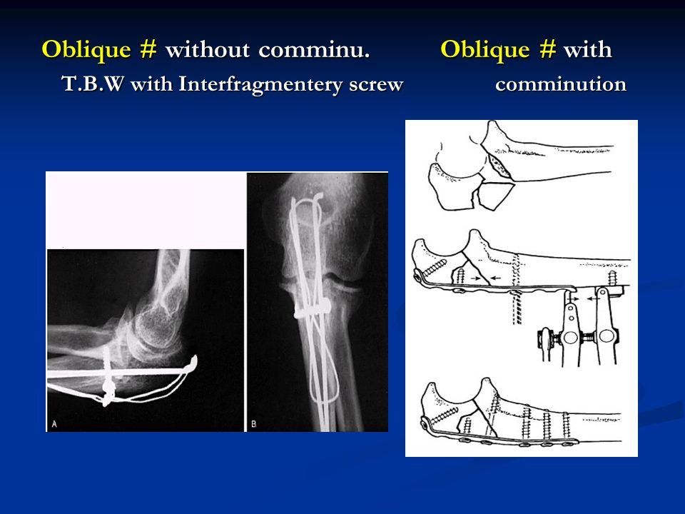 Oblique # without comminu. Oblique # with T. B