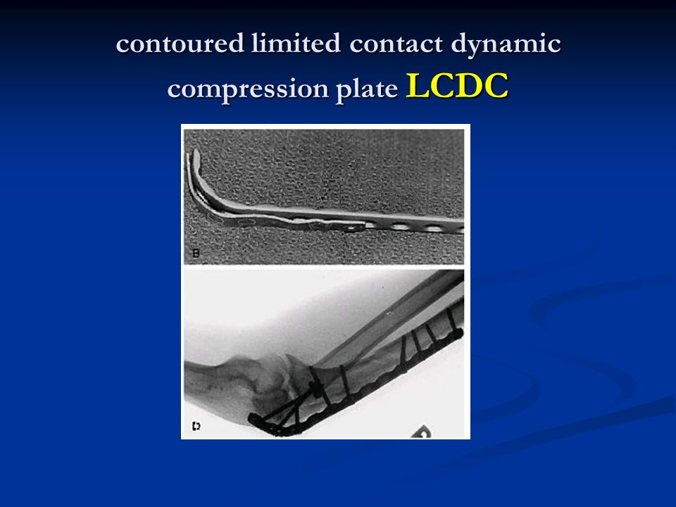 contoured limited contact dynamic compression plate LCDC