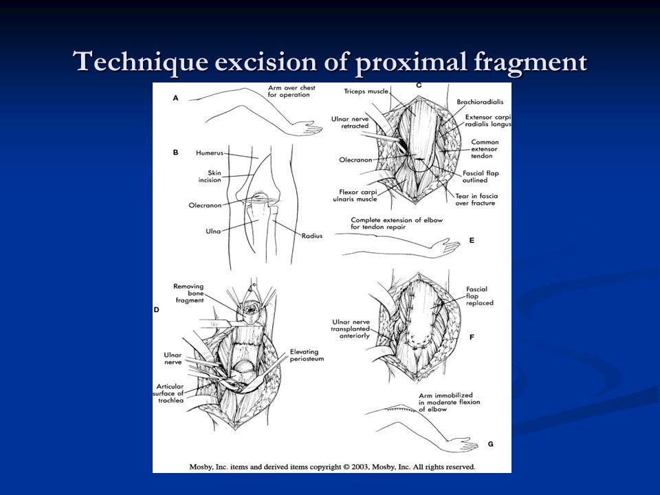 Technique excision of proximal fragment