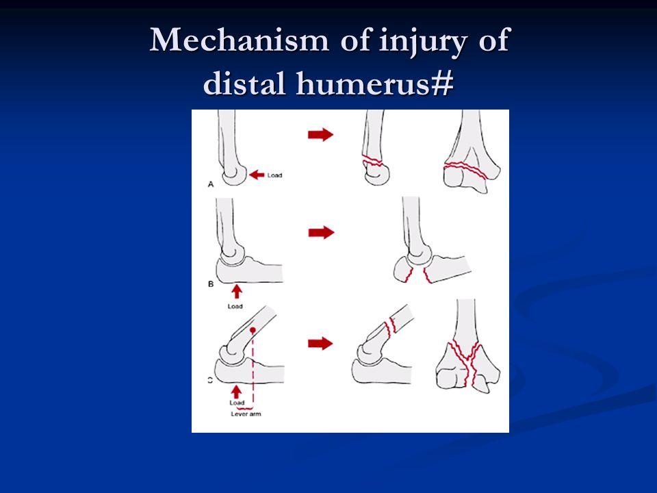 Mechanism of injury of distal humerus#