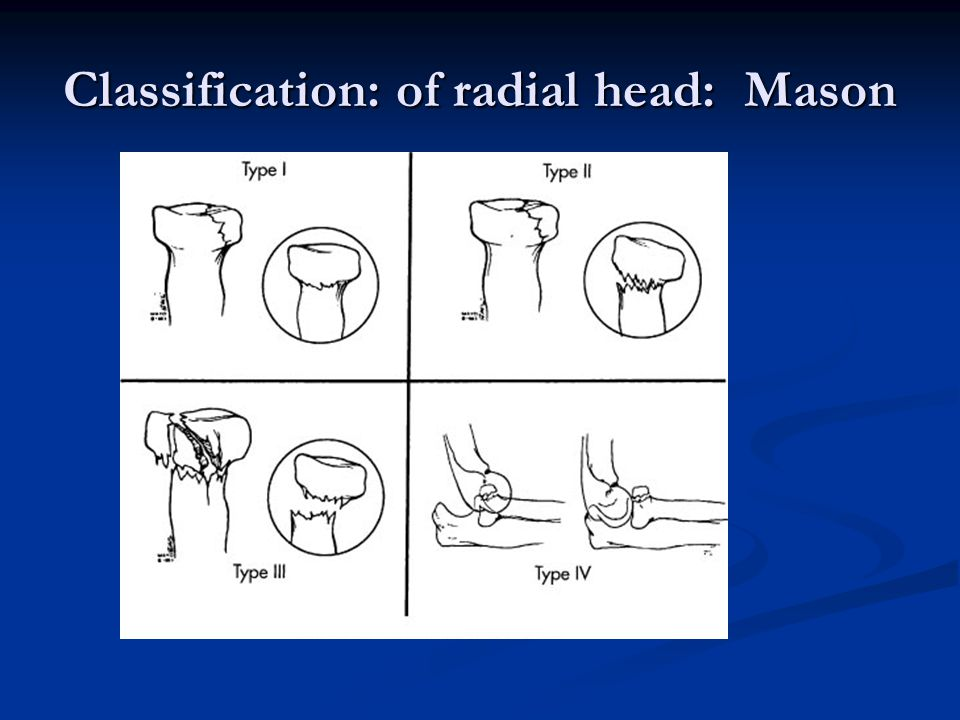 Classification: of radial head: Mason