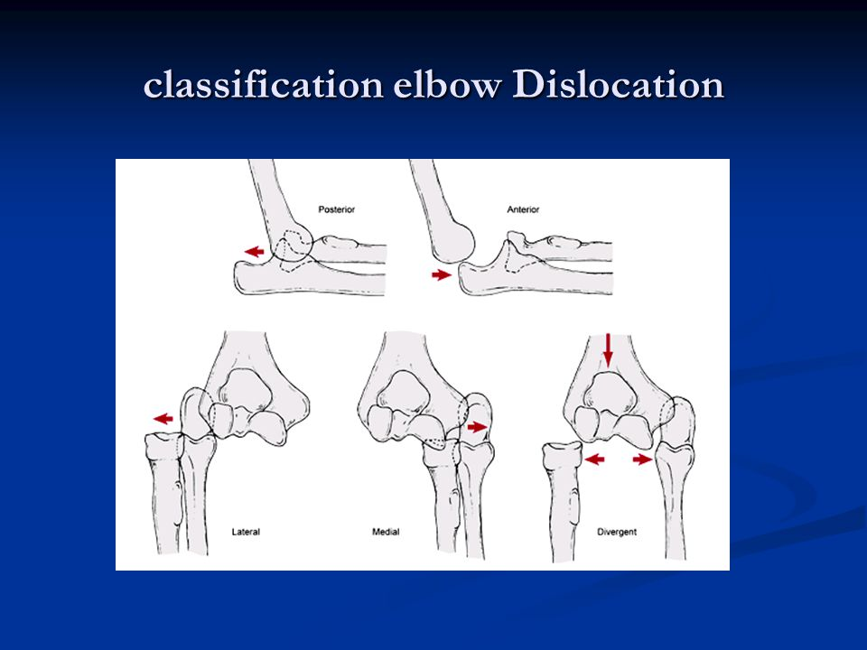 classification elbow Dislocation