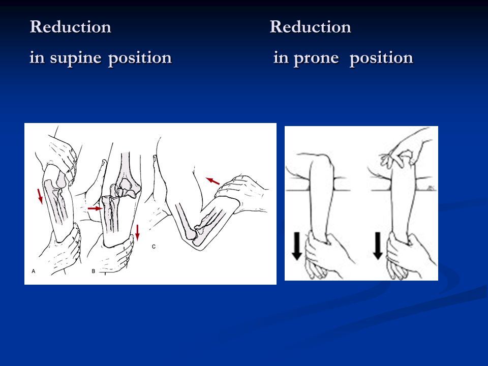 Reduction Reduction in supine position in prone position