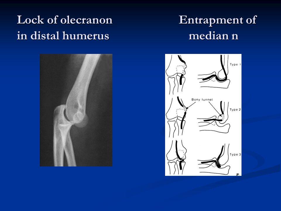Lock of olecranon Entrapment of in distal humerus median n