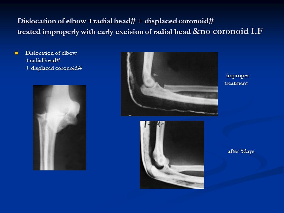 Dislocation of elbow +radial head# + displaced coronoid# treated improperly with early excision of radial head &no coronoid I.F
