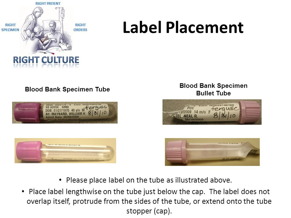 Please place label on the tube as illustrated above.