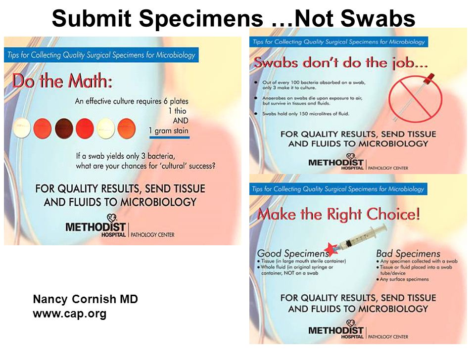 Submit Specimens … Not Swabs Nancy Cornish MD www.cap.org Mike