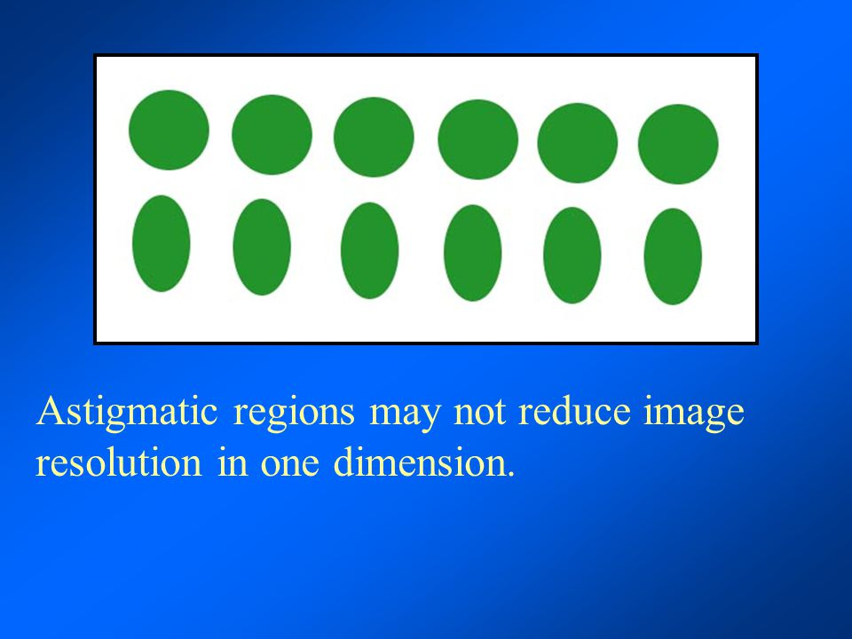 Astigmatic regions may not reduce image resolution in one dimension.