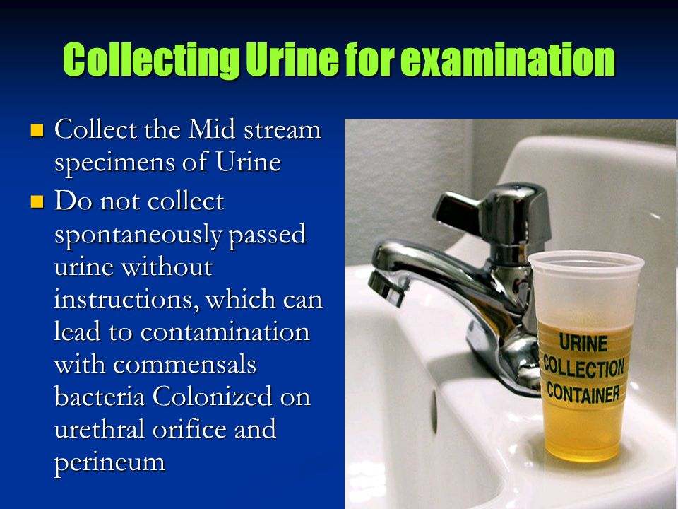 Collecting Urine for examination