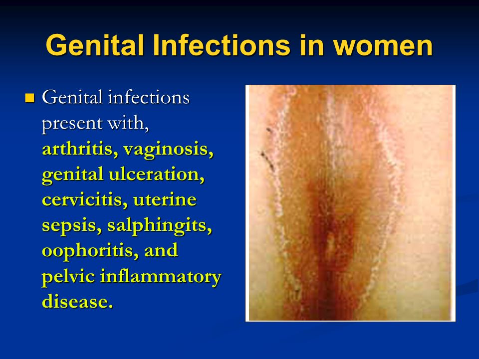 Genital Infections in women