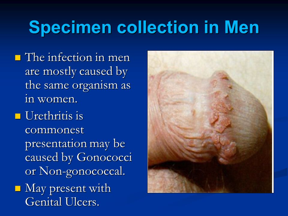 Specimen collection in Men