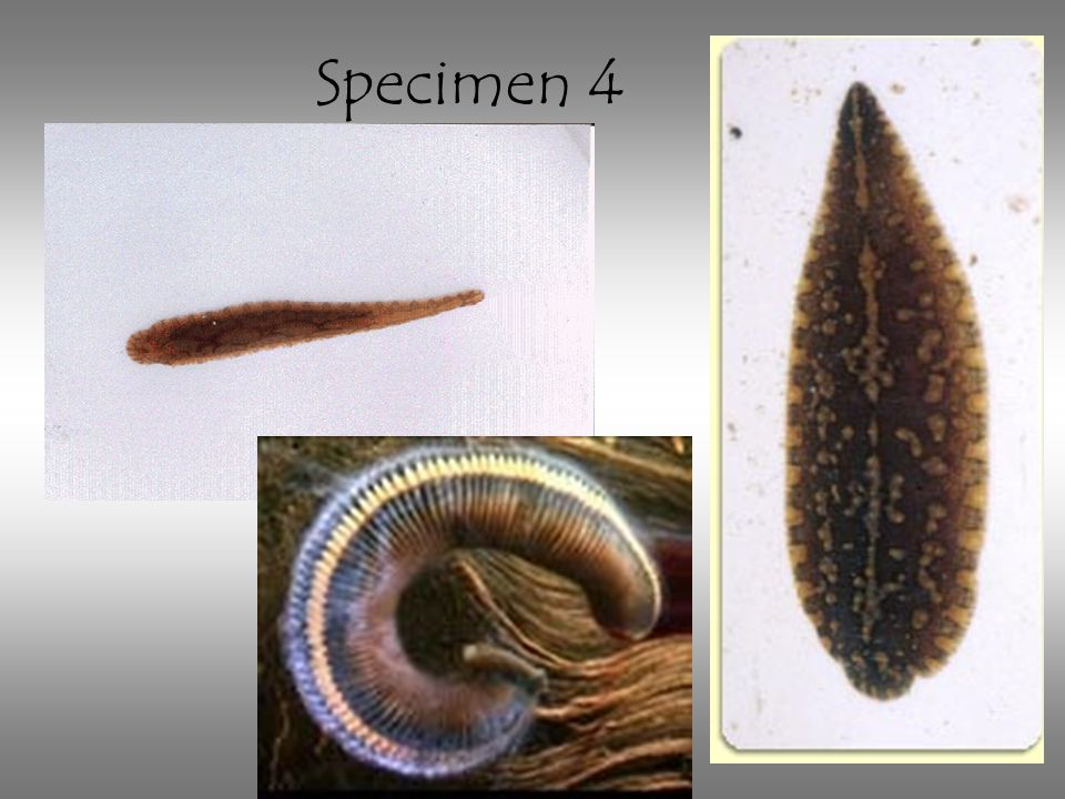 Specimen 4 Leech: note the segmentation and absence of head or tail