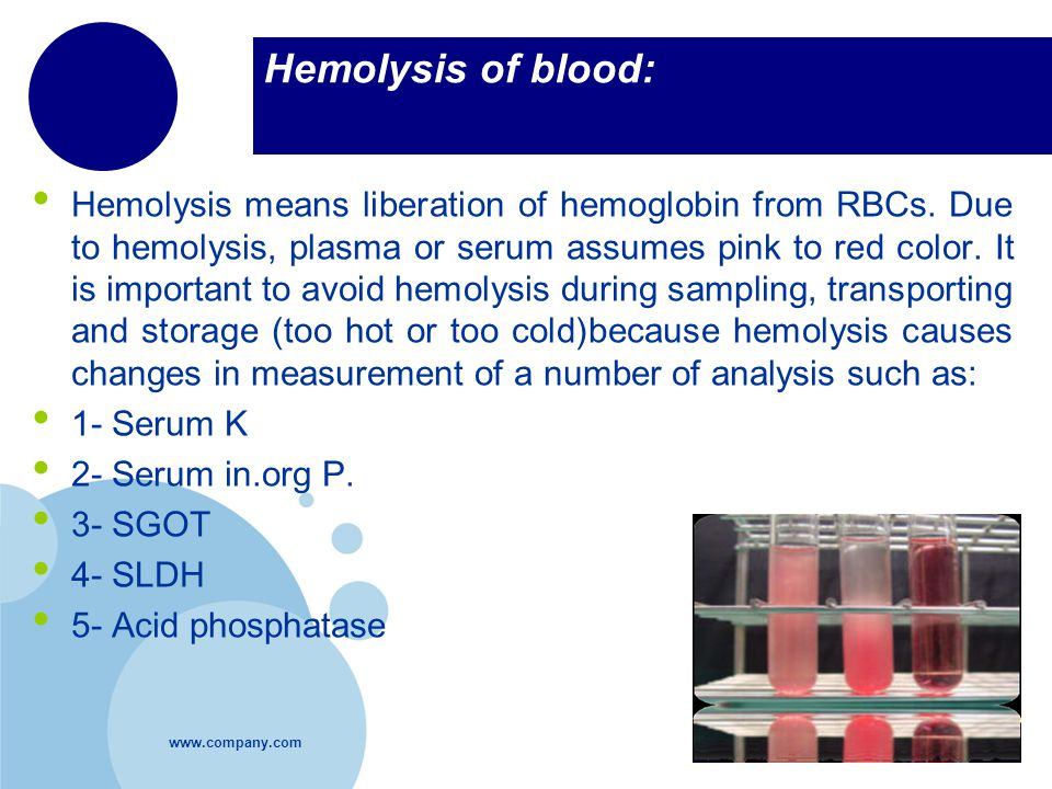 Hemolysis of blood: